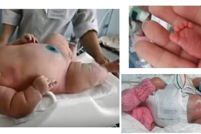 Waga niemowlaka czyli największe i najmniejsze noworodki w historii!