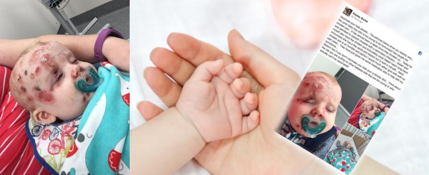 Mądry rodzic po szkodzie – przeczytaj,  zanim odmówisz dziecku szczepień!